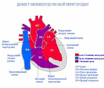 Схематическое изображение дефекта межжелудочковой перегородки ДМЖП в сердце